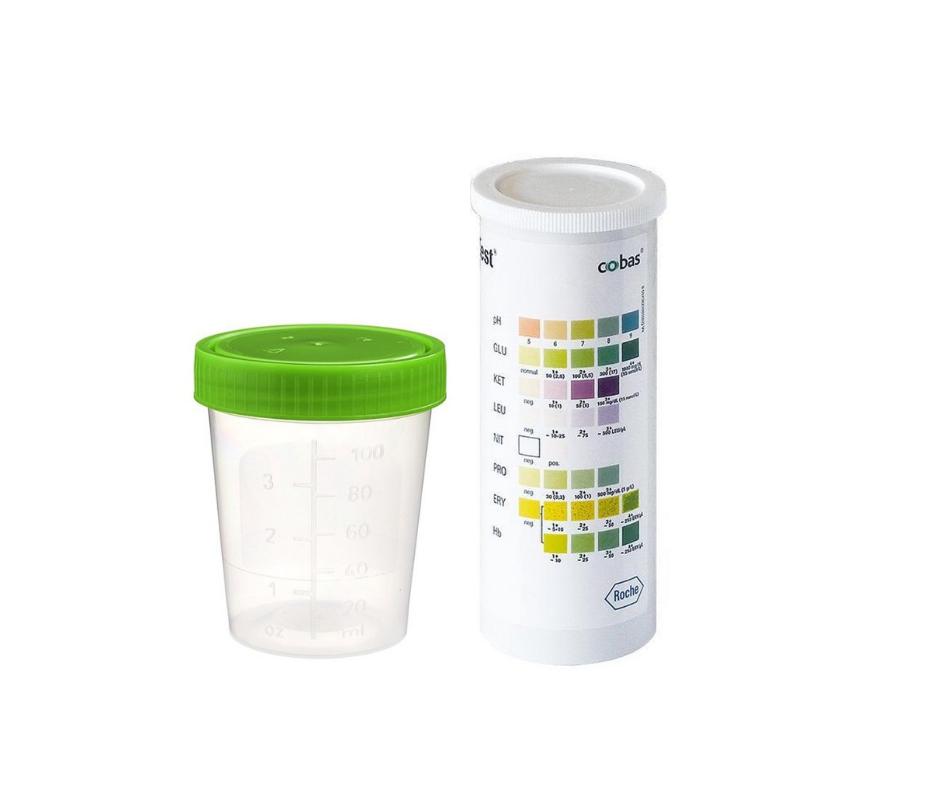 Urine potje en kleurenschaal